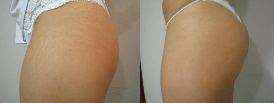 Micropuntura para Estrias e Marcas de Expressão em São josé SC